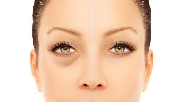 Worried about dark circles, try these home remedies!!!!