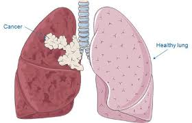 Lung Diseases: Glasgow has the highest mortality rate