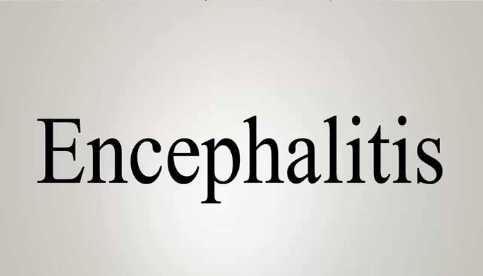 All you need to know about Encephalitis | Causes, symptoms, treatment