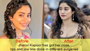10 Bollywood celebs who went too far with plastic surgeries