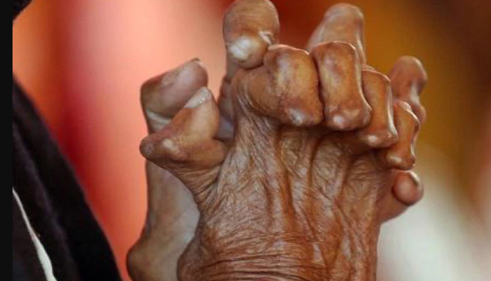 LS passes a Bill to remove Leprosy as ground for dissolution of marriage