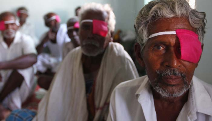 At least 10 patients complain of blurred vision after cataract surgery