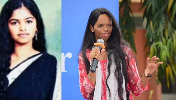Laxmi Agarwal- An Acid Attack Survivor; Her story is inspiration for all