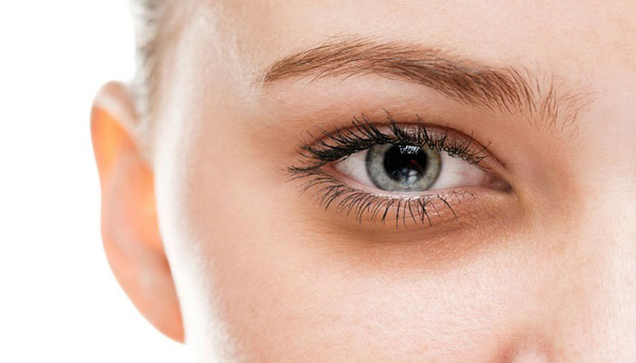 Worried about dark circles? Here are the ways how they can be tackled